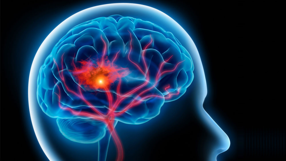 How to treat, manage brain stroke related disability