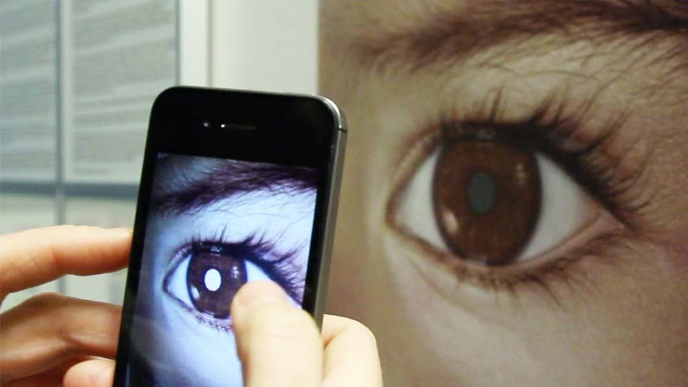 Retinoblastoma: Now spot eye cancer with your smartphone's camera
