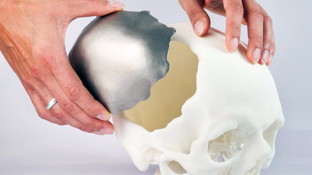 Flipkart invests USD 1 milliom in a 3D Printing startup Supercraft 3D