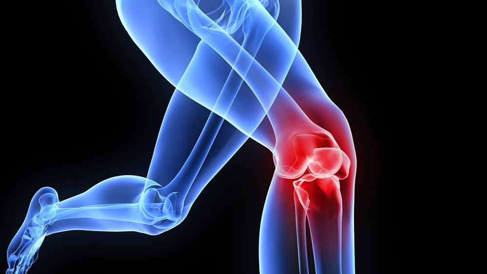 Orthopaedic Devices -the Industry that Focuses on the Best for Bones