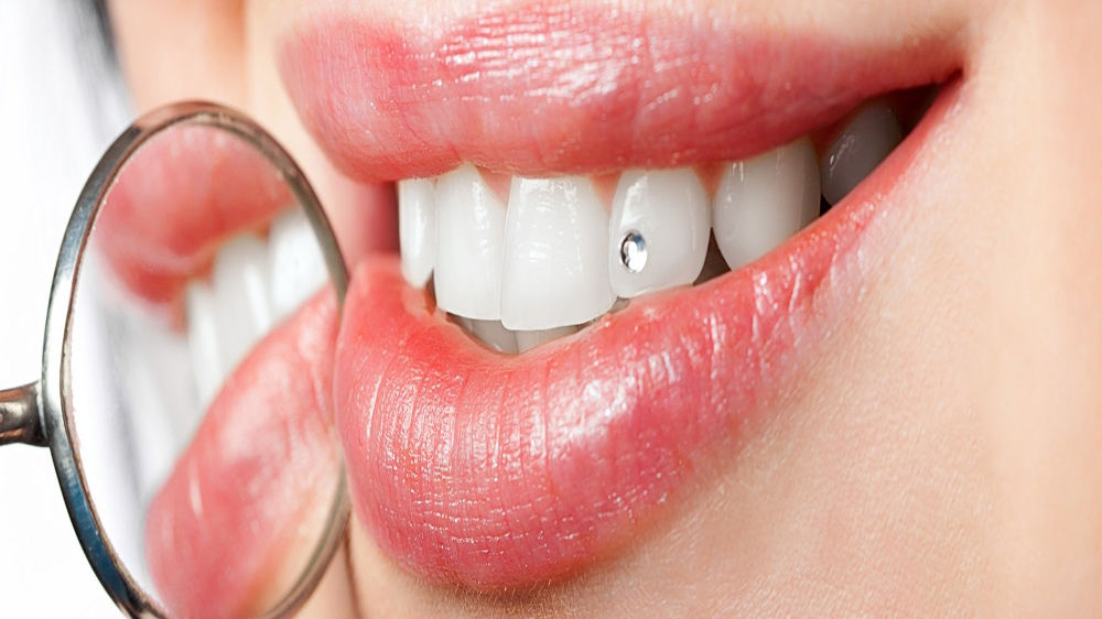 Fashion Trends That Dental Care Franchise Should Look Out For