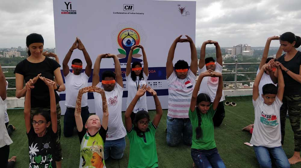 "Sankara Eye Hospital Bangalore conducts ""Blindfold Yoga"" session"