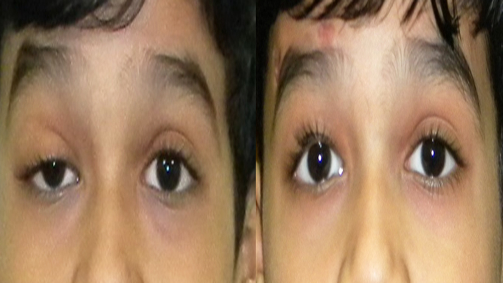 New Technique developed by Indian Doctors to Improve Treatment of Ptosis