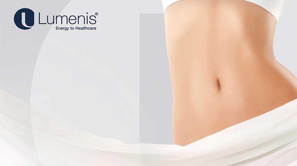Lumenis salutes women with 'No more stretch-marks' Campaign