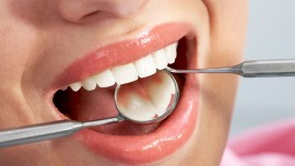 How oral health gets affected by daily dose of sugar